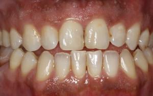 Gum bleaching