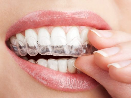 Invisible Solution for Your Teeth